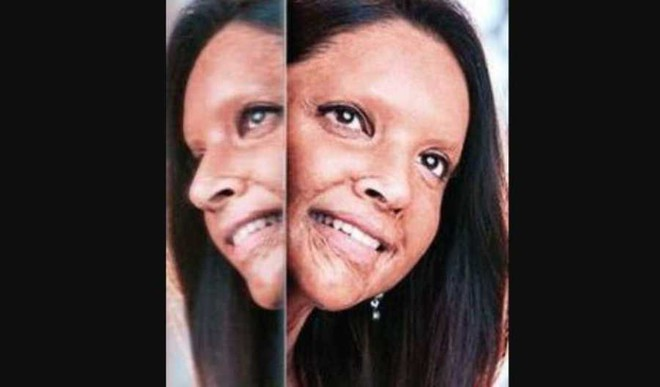 Chhapaak: Story Of A Woman's Indomitable Spirit